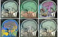 Doped derivative-free algorithms for medical image registration